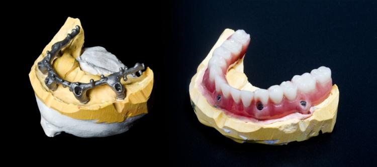 что это покрывные зубные протезы