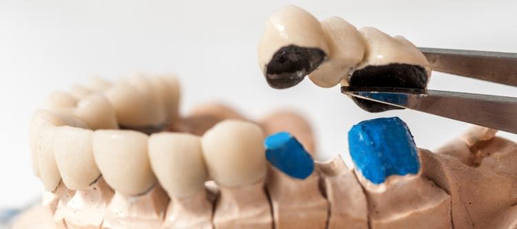 какие зубы себе лучше вставлять