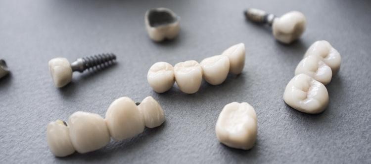 вставить себе зуб сколько это стоит