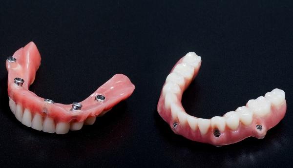какие бывают покрывные зубные протезы