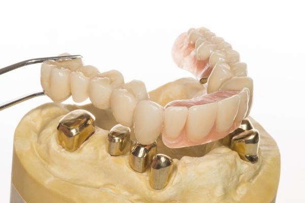 Как устанавливают зубной протез покрывного типа