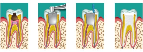 проблемы из-за некачественного лечения зуба