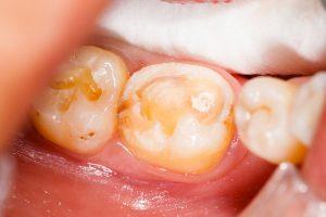 некачественная пломба отходит от зубов