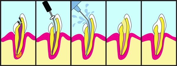 Лечение пульпита хирургическим путем