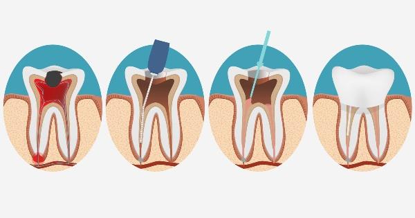 зуб болезненно реагирует на температуру