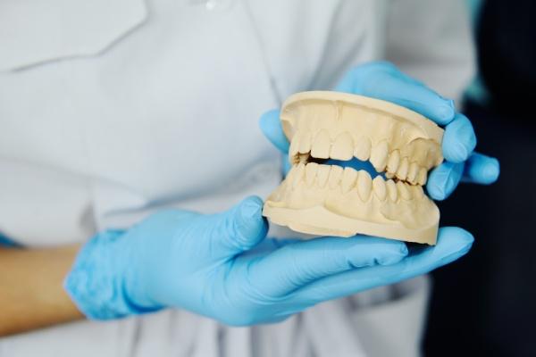 виниры на зубы стоимость в архангельске
