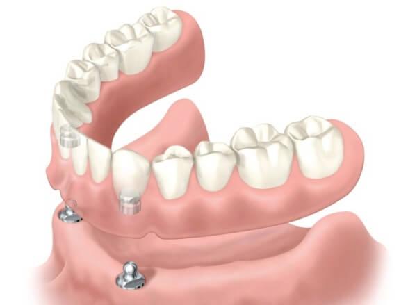 Как поставить зубной имплант - 5