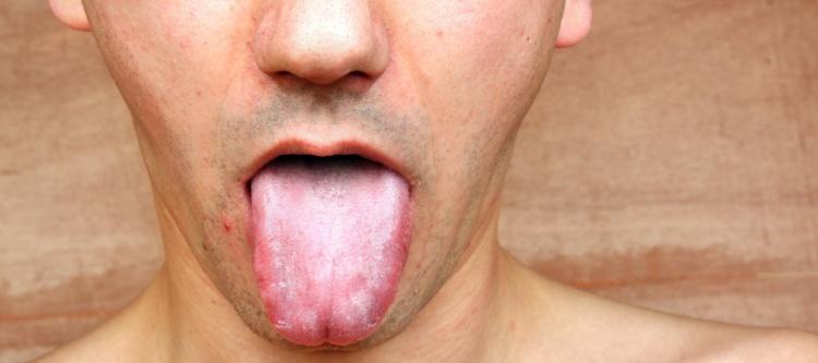 почему у человека белый налет на языке