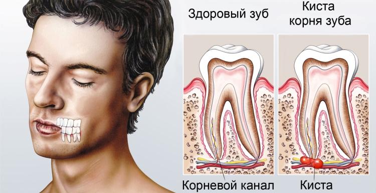 киста зуба и ее симптомы