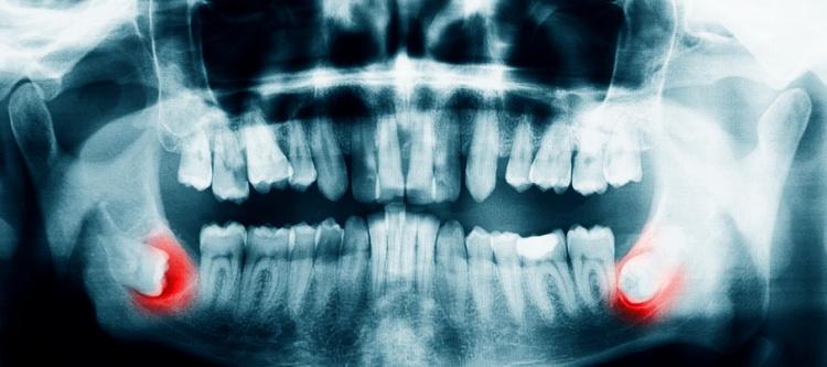 растет зуб мудрости какие у человека симптомы