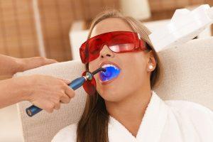 как производится отбеливание зубов лазером