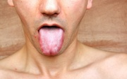 почему белый налет на языке