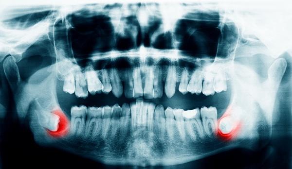Зуб мудрости пока не прорезался, но уже болит