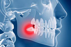 Основные виды проблем при росте зубов мудрости