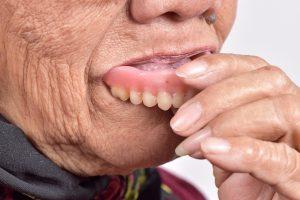 в чем плюсы зубных протезов из нейлона