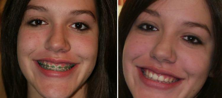 брекеты до и после фото с примерами лечения