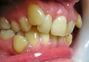 зубы расположены во рту слишком близко