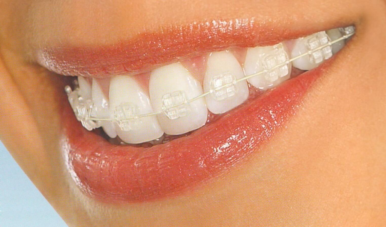 виниры на зубы цена в новосибирске отзывы