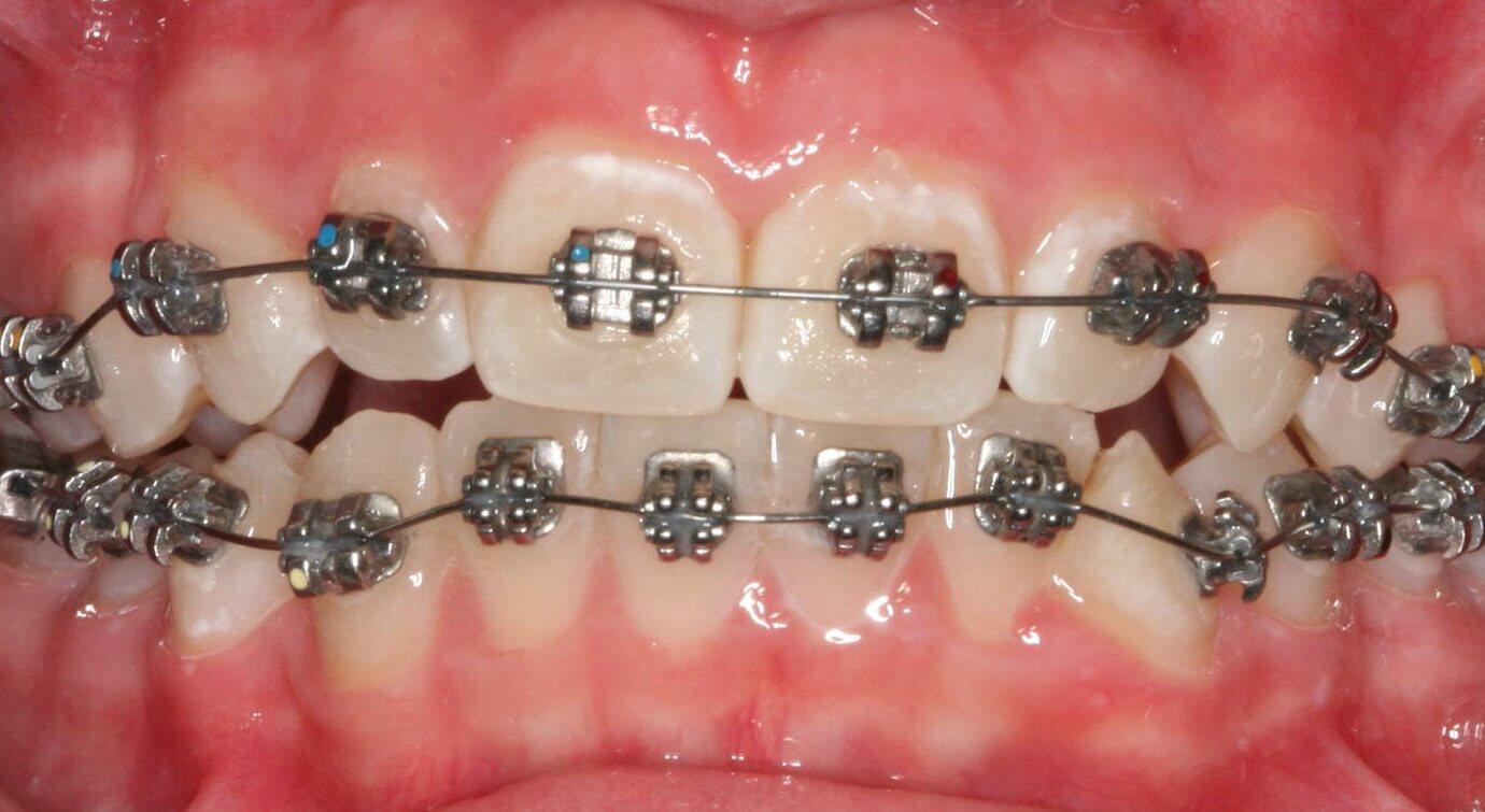 сколько стоят зубные виниры