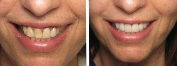 виниры на зубы нижней челюсти