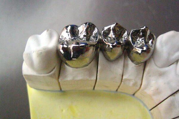 metal prothesis