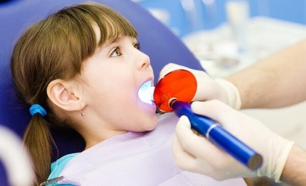 что представляет собой серебрение молочных зубов