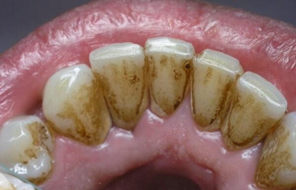 отчего возникает камень на зубах