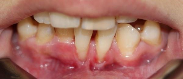 опасно слишком интенсивно чистить зубы