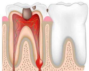 нужно ли избавляться от зубного нерва