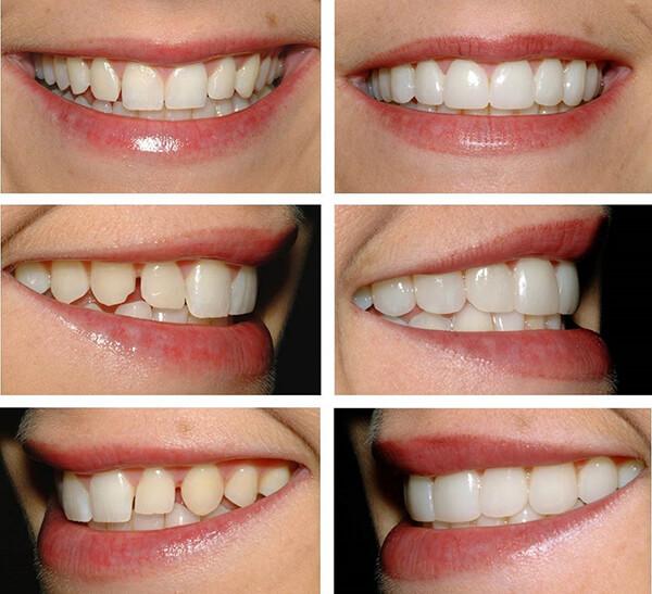 сколько стоят виниры на зубы в туле