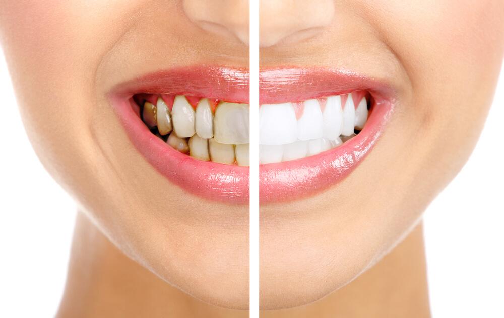 как убирается зубной камень самостоятельно в домашних условиях