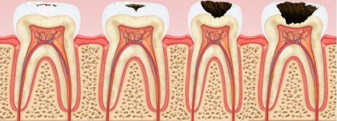 фото со стадиями кариеса зубов