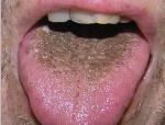 коричневый налет на языке по утрам