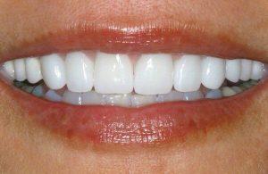 виниры из диоксида циркония на передний зуб