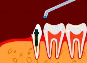 штифтовое наращивание для коренных зубов
