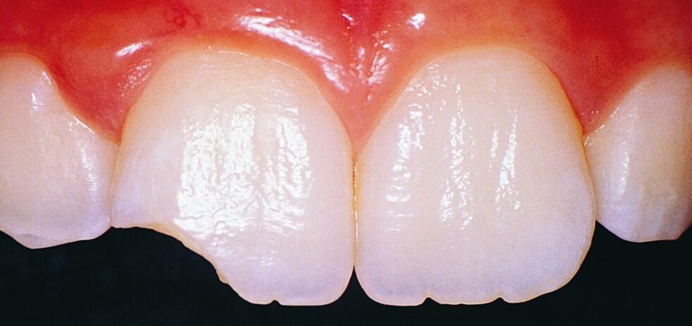 сколько стоит услуга нарастить зуб