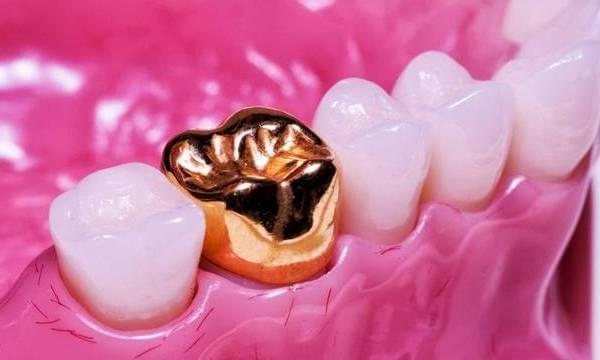 Какие бывают коронки на зубы, и какие из них самые лучшие?