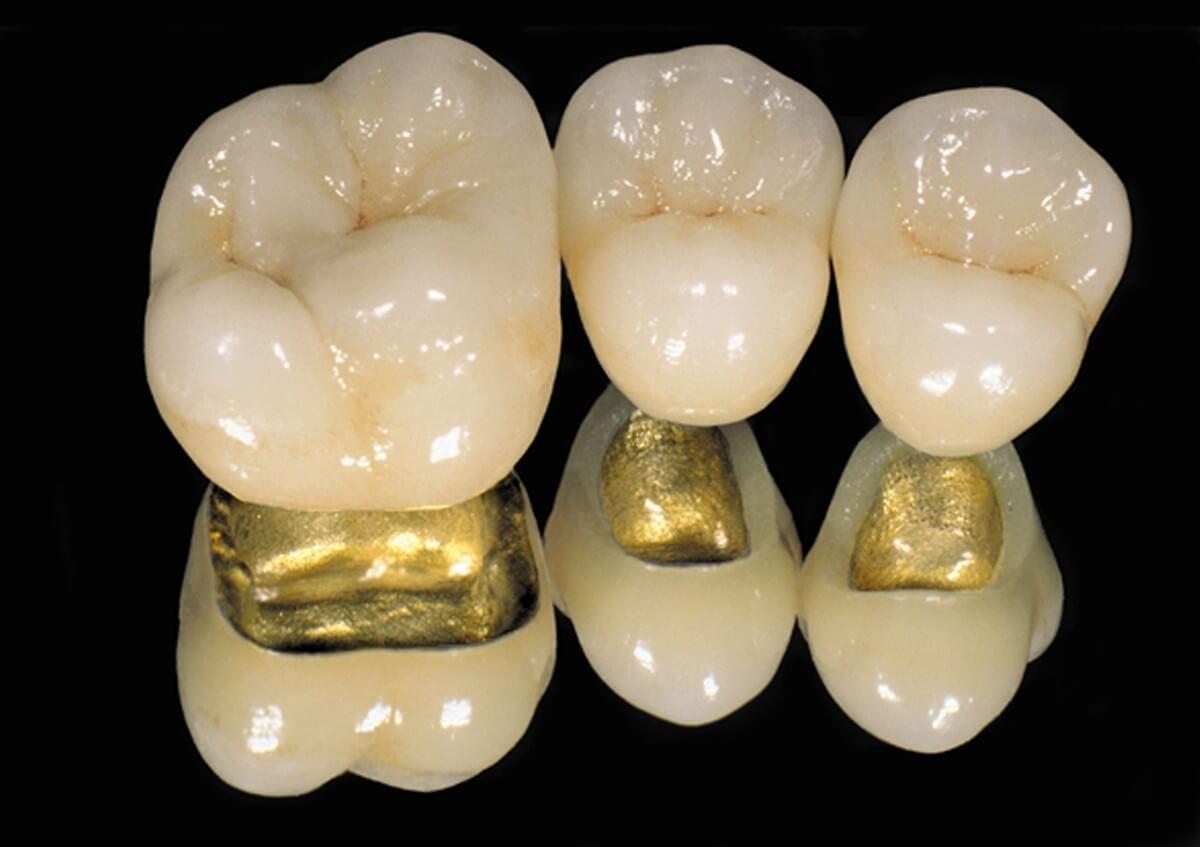 коронки на зубы какие лучше подобрать