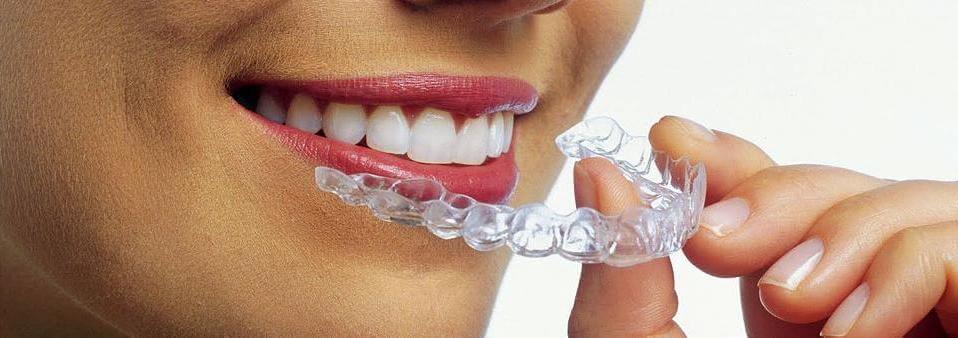 капы для выравнивания зубов у человека