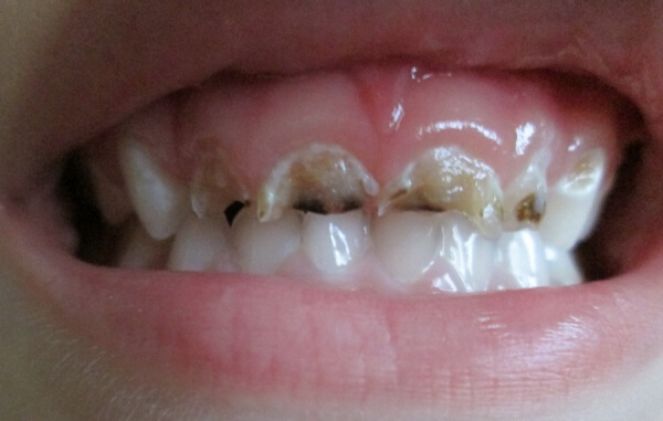 От чего крошатся молочные зубы что делать