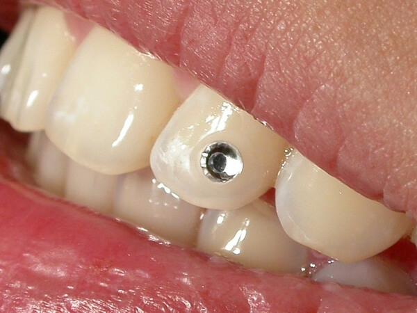 стразы на зубы используемые в стоматологии