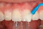 можно ли восстановить зубную эмаль и как это сделать