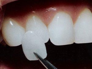 приклеивание на зубы люминиров