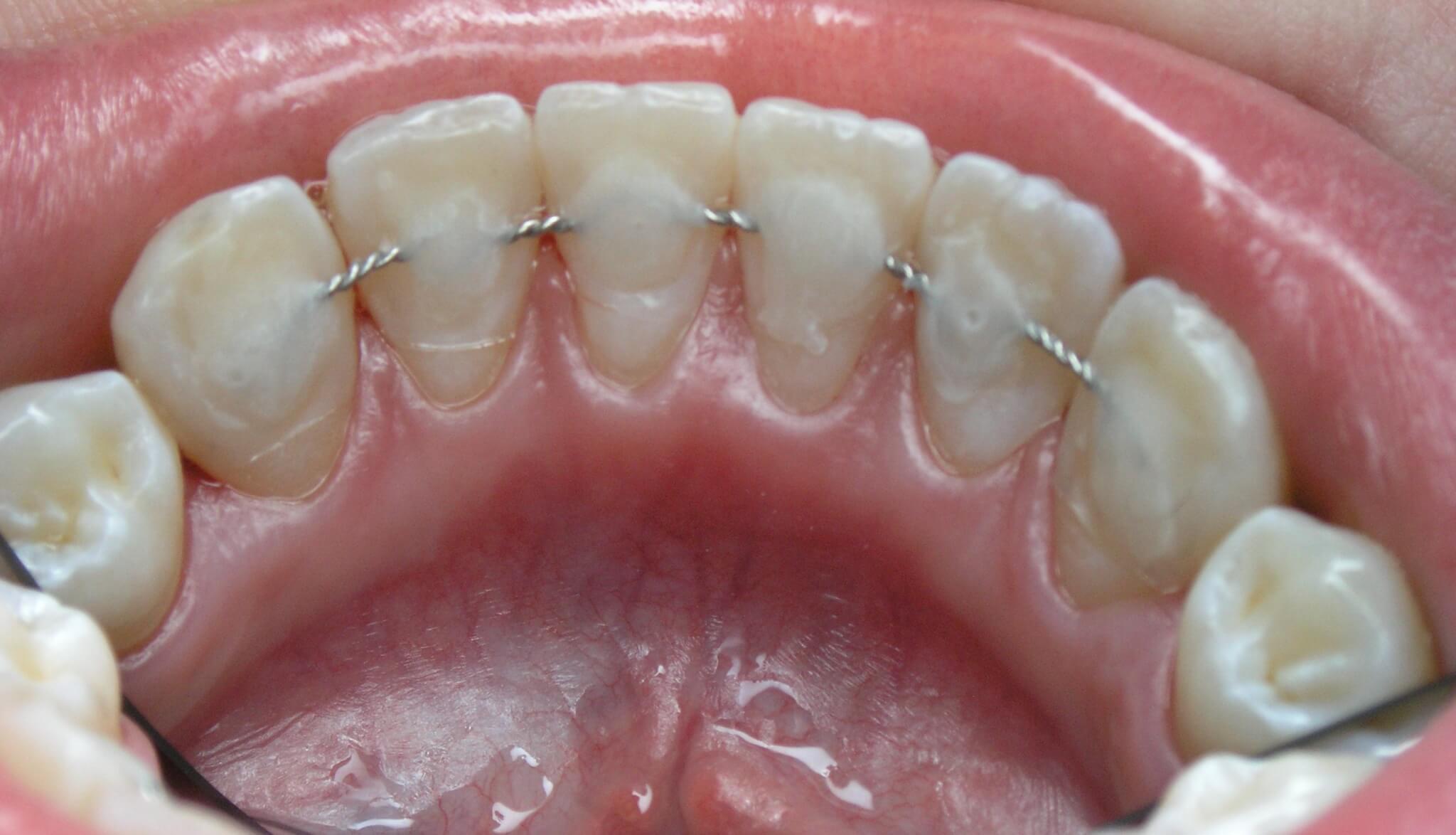 Процедура шинирования зубов с примерами фото «до и после»