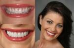 люминиры фото до и после