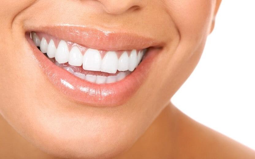 люминиры фото до и после их установки на зубы