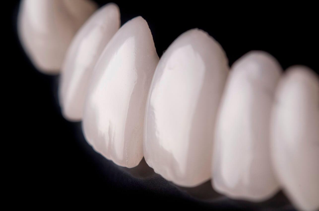 люминиры средняя цена за один зуб