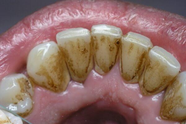 зубной камень вызывают в том числе микроорганизмы