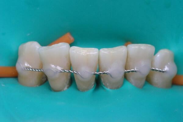 что говорят пациенты о шинировании зубов