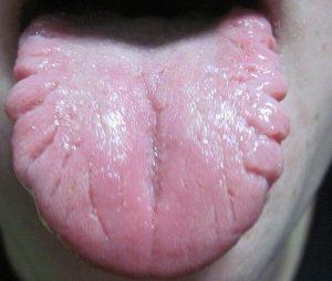 трещины с боковых частей языка